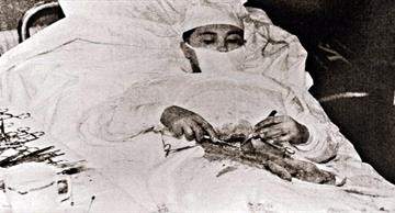 In 1961 a Soviet general practitioner had to perform surgery on himself!