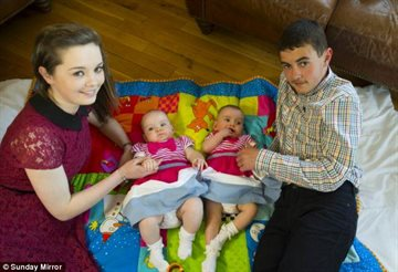 Общество Story: Женщина родила близнецов с разницей в 87 дней