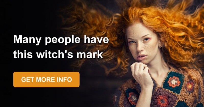 Story: Are you kissed by the sun? The whole truth about freckles