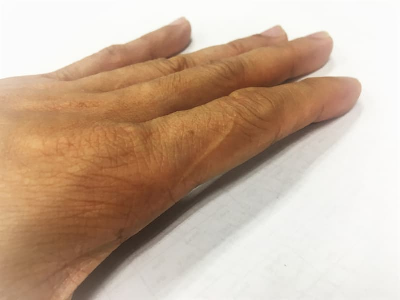 funny Story: index finger