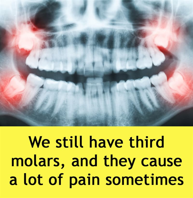 Science Story: We still have third molars, and they cause a lot of pain sometimes