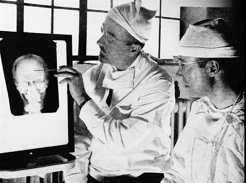 Science Story: #2 Lobotomy