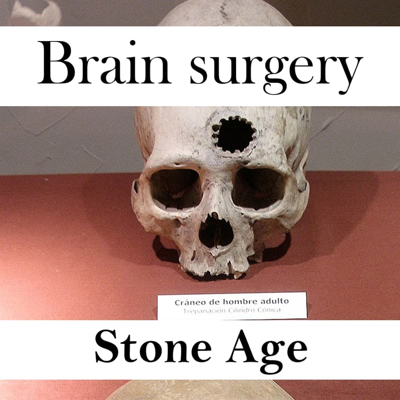 Culture Story: Things that are older than you think brain surgery