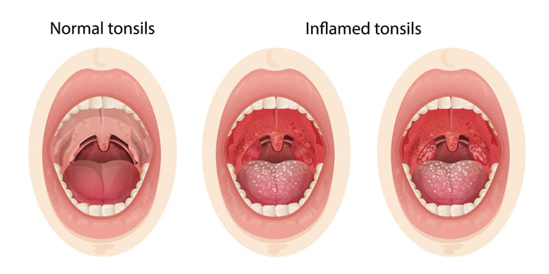 Science Story: #4 Tonsils
