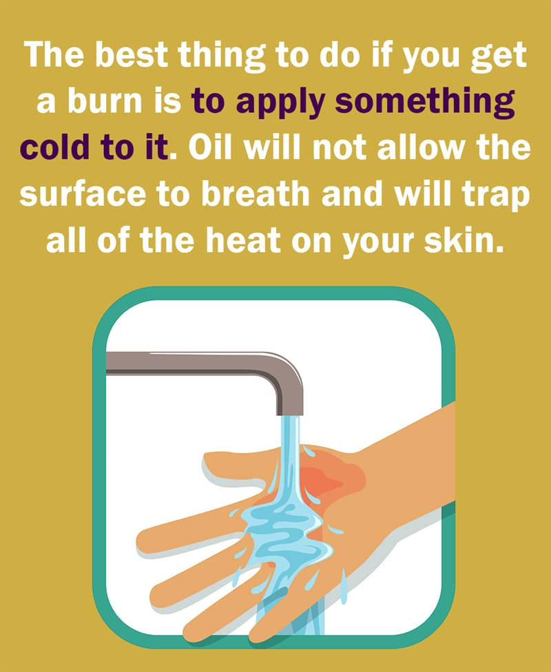 Science Story: The best thing to do if you get a burn is to apply something cold to it. Oil will not allow the surface to breath and will trap all of the heat on the skin.
