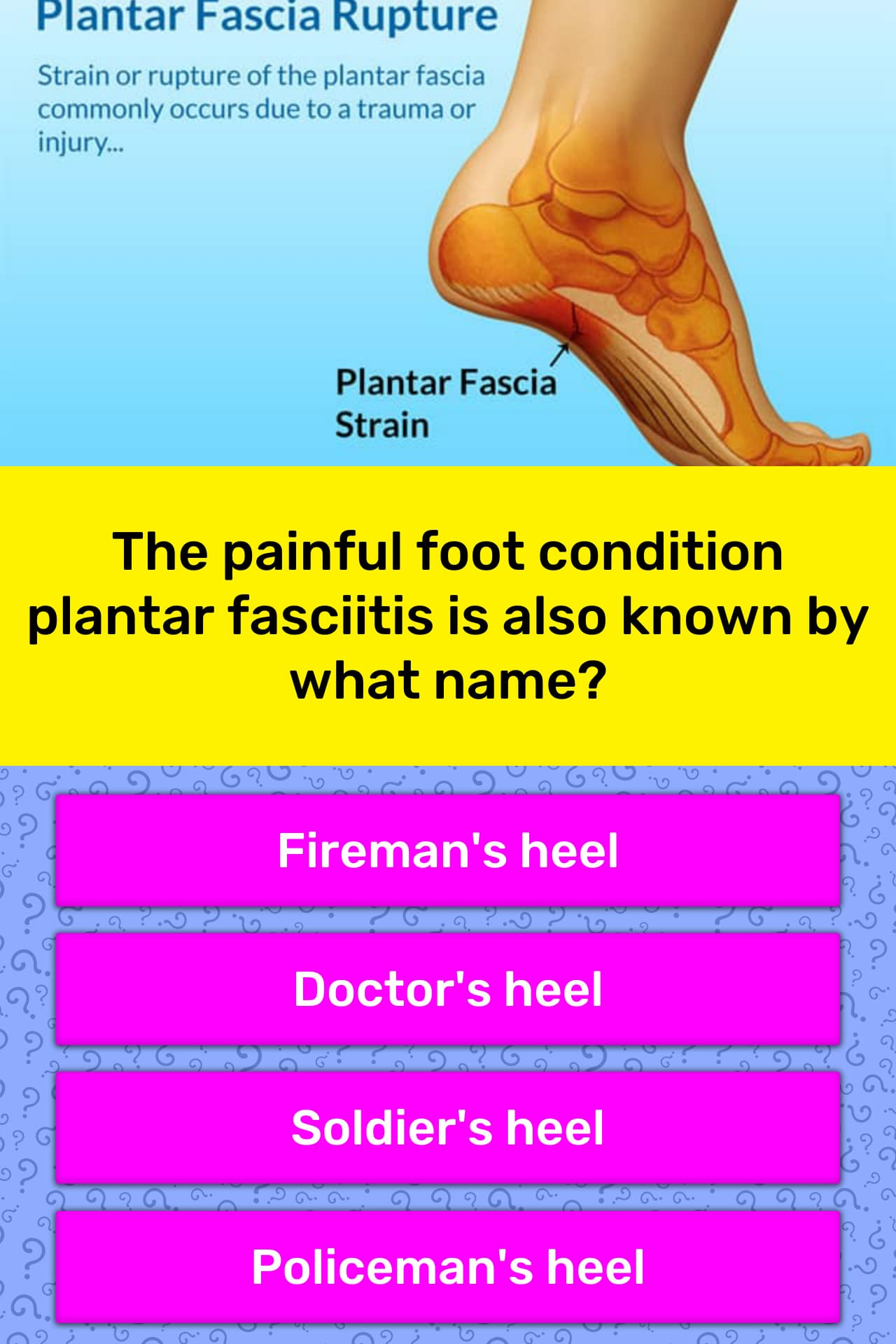 bd74a674d5 The painful foot condition plantar...   Trivia Answers   QuizzClub
