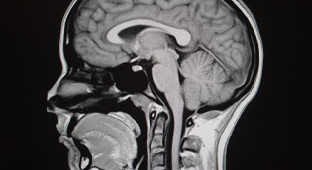 Science Trivia Question: What gland is found just below the optic chiasma of your brain?