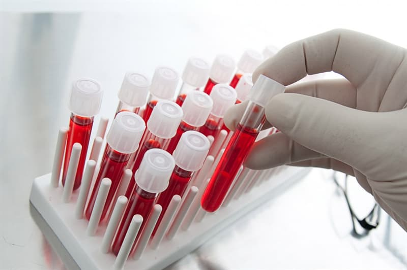 Science Trivia Question: Anemia is caused by a deficiency of what?
