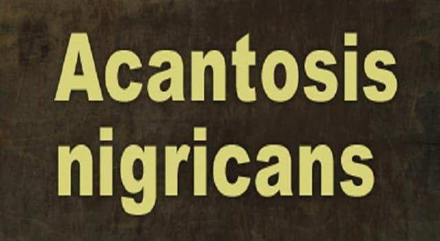 Сiencia Pregunta Trivia: ¿Qué es la acantosis nigricans?
