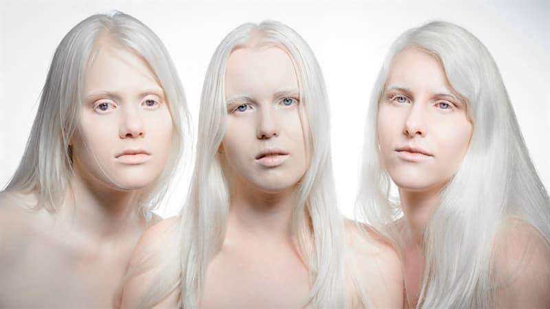 Наука Вопрос: Как называют человека, у которого отсутствует в организме меланин, окрашивающий кожу и волосы?