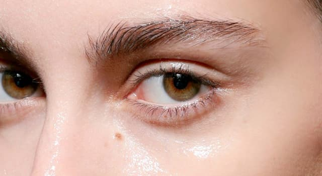 Science Trivia Question: Xeroderma is a skin condition characterized by what?