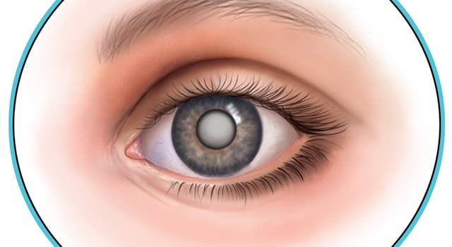Science Trivia Question: What is a clouding of the lens in the eye which leads to a decrease in vision called?