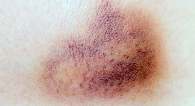 Nature Trivia Question: Why do bruises change colour?