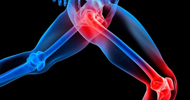 Science Trivia Question: Which of these muscles can move the hip joint and the knee joint?