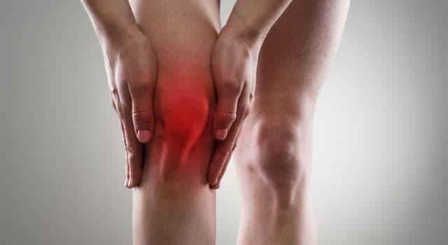 Сiencia Pregunta Trivia: ¿Qué es la gonartrosis?