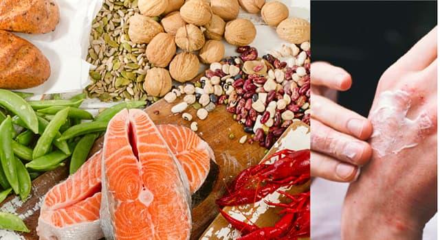 Сiencia Pregunta Trivia: ¿Qué vitamina es la encargada de prevenir la enfermedad llamada pelagra?