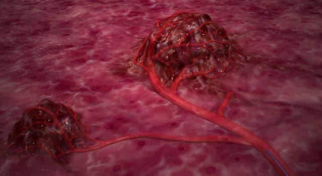 Сiencia Pregunta Trivia: ¿Cómo se llama a una anormal masa de tejido que aumenta por excesiva multiplicación celular?